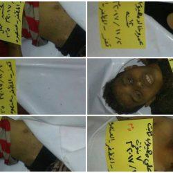 جريمة لمليشات الحوثي توقع خمس شهداء من الأطفال